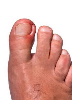 Bellevue Podiatrist | Bellevue Ingrown Toenails | WA | Podiatry |